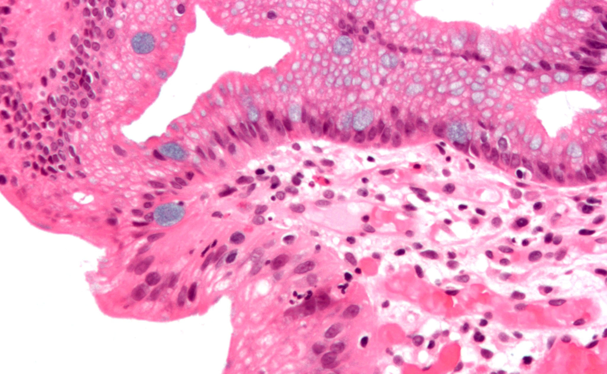 High-magnification micrograph of Barrett's esophagus showing the characteristic goblet cells.
