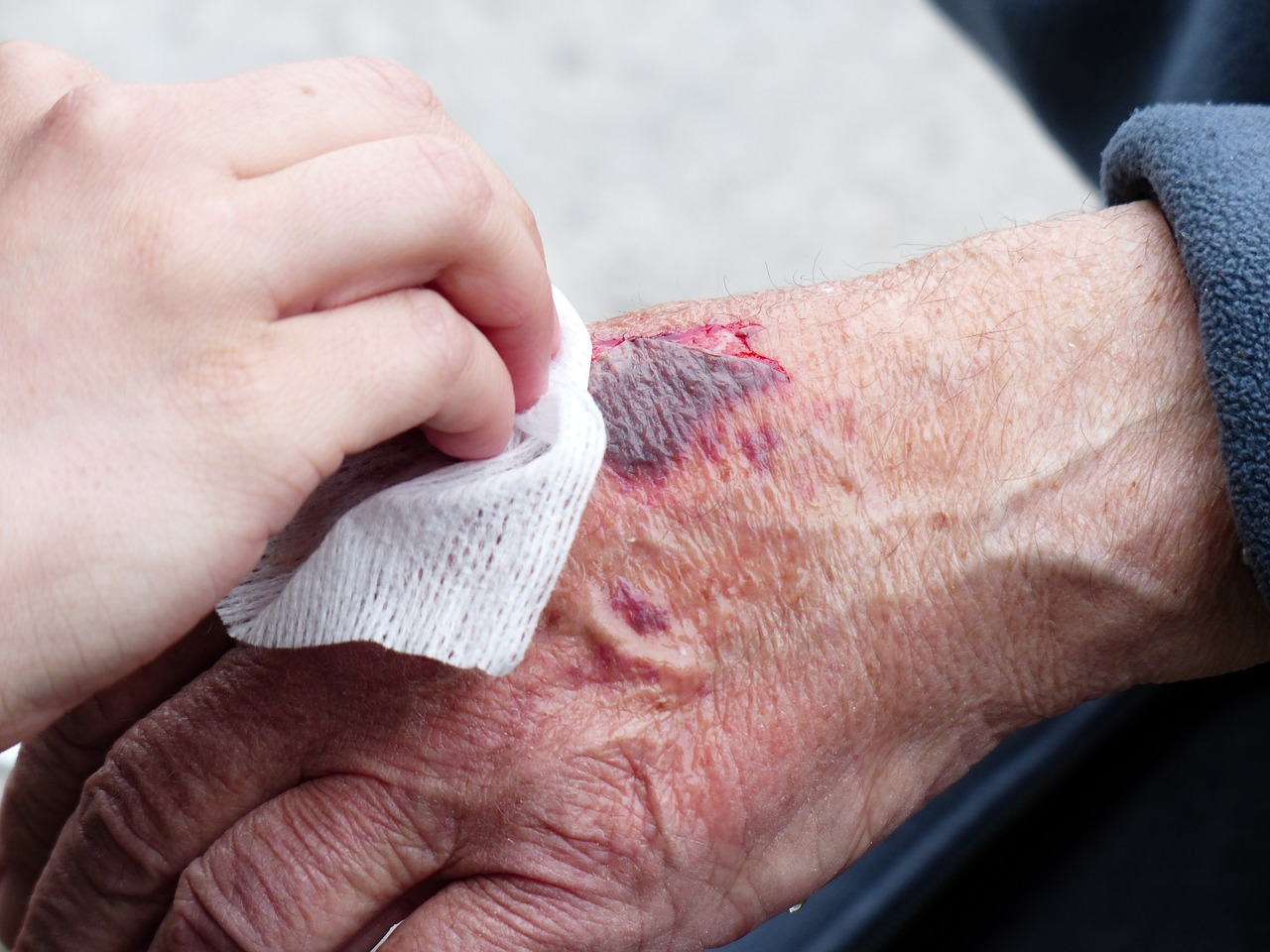 Wound care of lesion on elderly hand