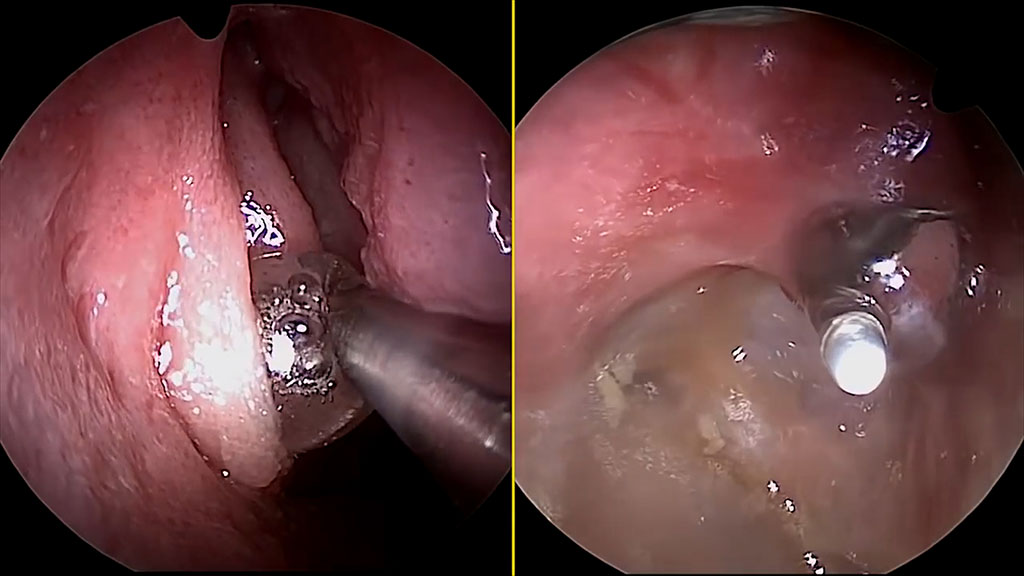 Balloon sinus dilation internal technical image