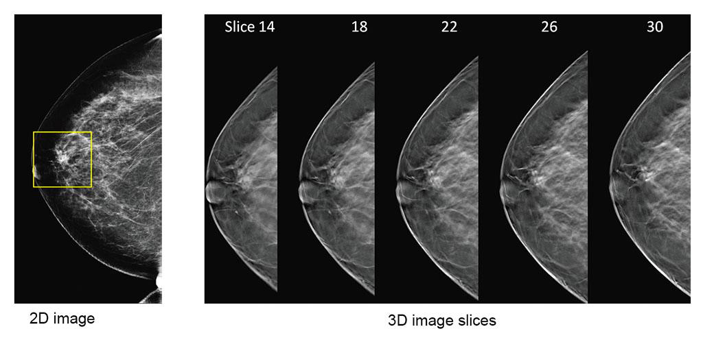 2d vs 3d mammography comparison