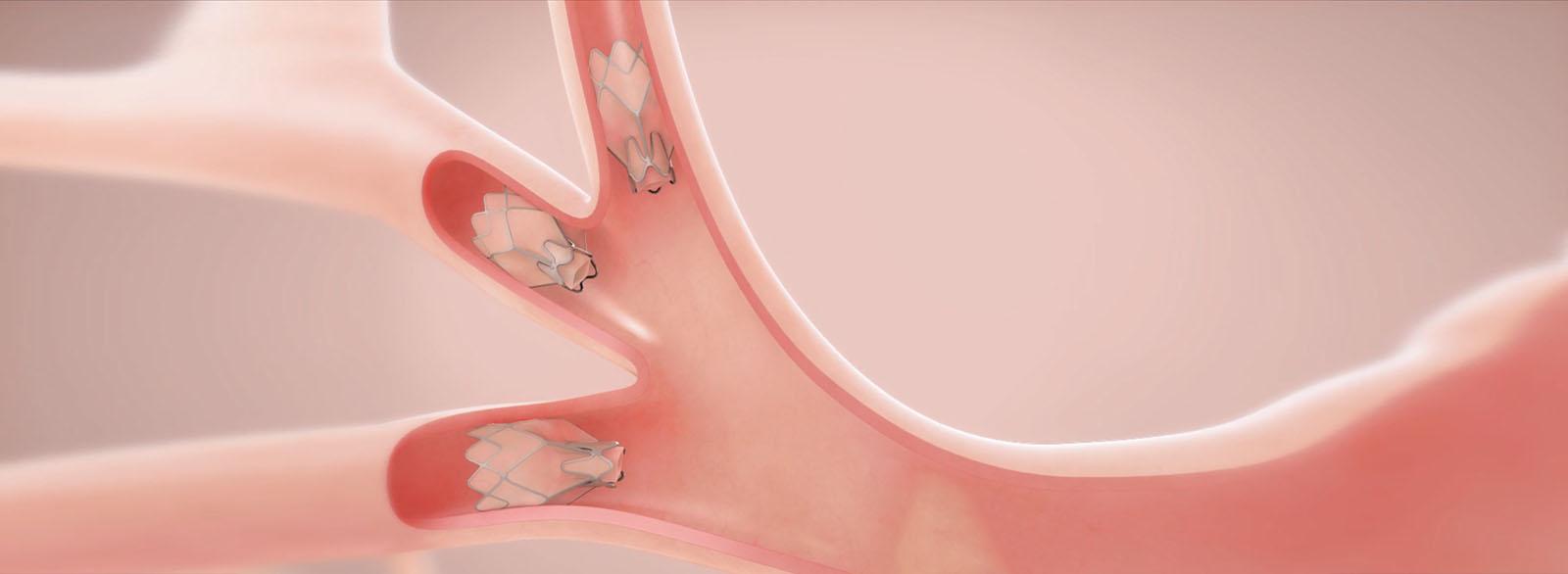 Zephyr Endobronchial Valve Treatment illustration