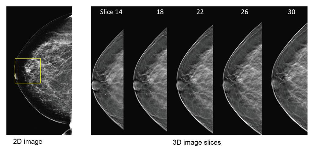 2d-vs-3d-mammography-comparison