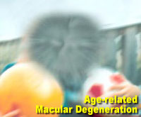 Simulation photograph: age-related macular degeneration