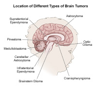 Locations of different tumors in the brain