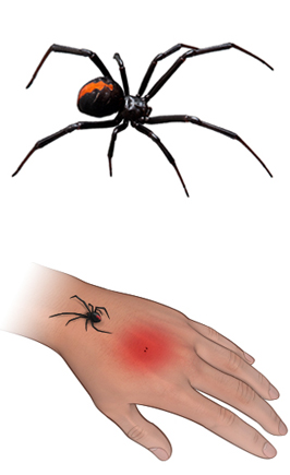 Black Widow spider and bite