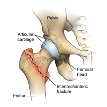 Intertrochanteric hip fracture