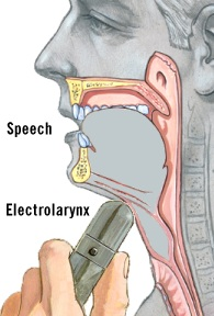 Illustration of an artificial larynx