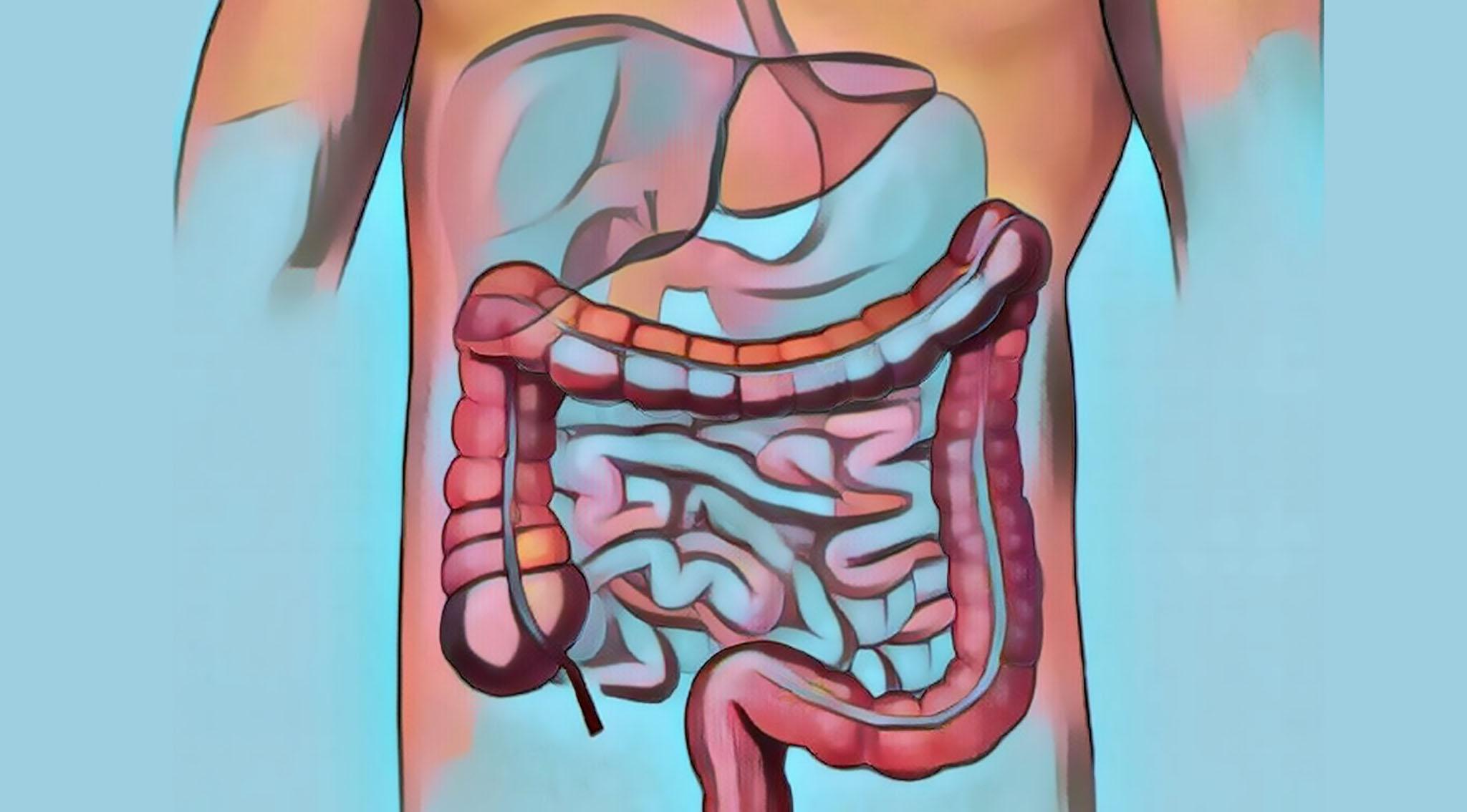 Irritable bowel syndrome artist rendering